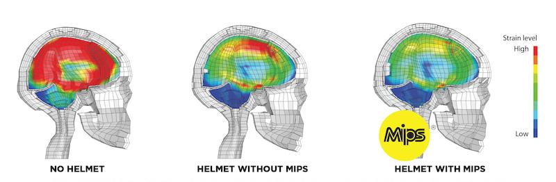 mips - impact hersenschade zonder en met mips